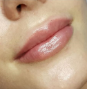Powiększanie ust. 0.55ml